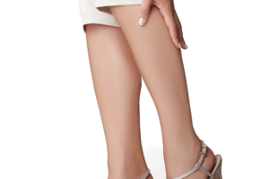 pernas-varizes-1